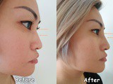 Non-surgical Nose Job with sl Clinic
