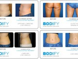 Utilizing CoolSculpting and Other Strategies for Weight Loss